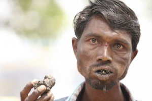 Индиец съедает около трех килограммов кирпичей, камней и грязи ежедневно