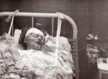 Нервная дочь проломила матери голову туристическим топором
