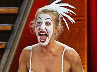 Новый нос Ксении Собчак обошелся ей  в 12 тысяч долларов. Фото