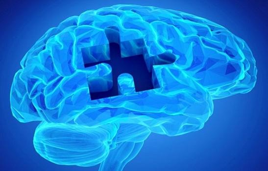 Препарат EPOCH для лечения болезни Альцгеймера оказался неэффективен
